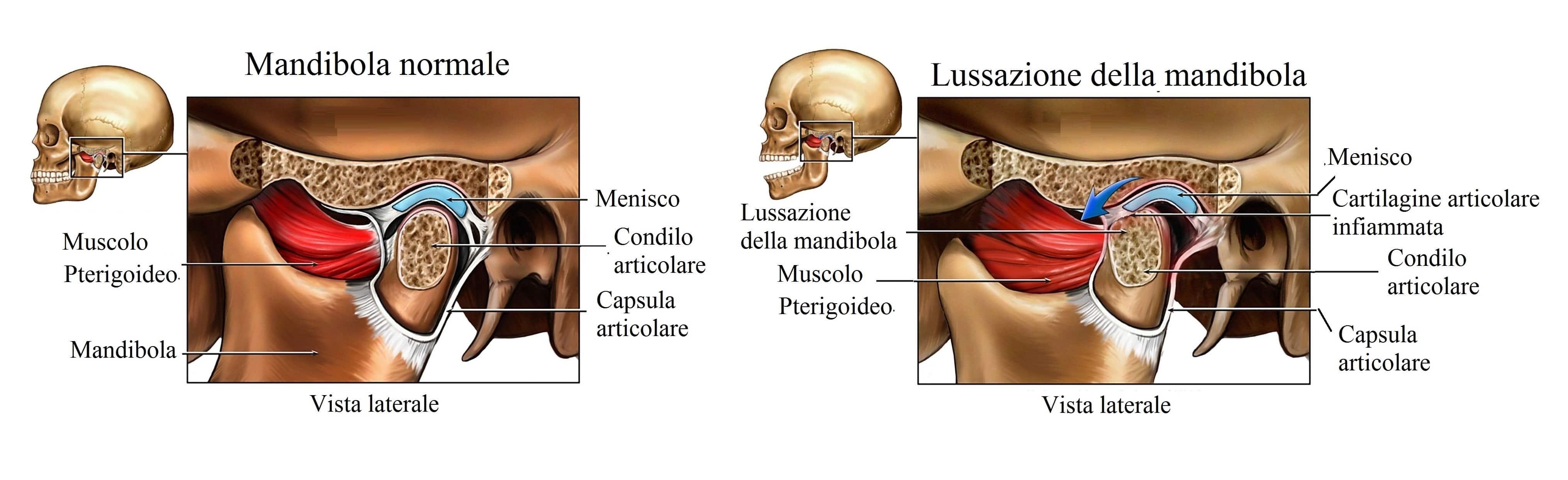 Lussazione della mandibola,malocclusione,dolore