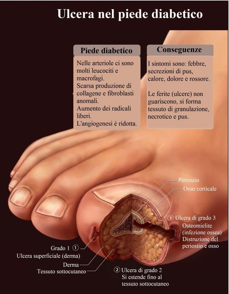 Ulcera,piede diabetico,sezione