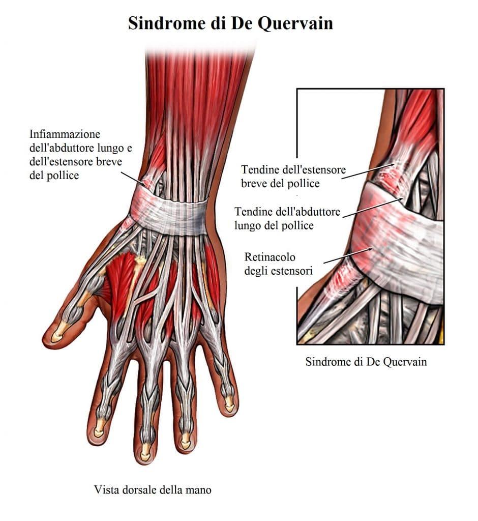 Sindrome di De Quervain,dolore al polso