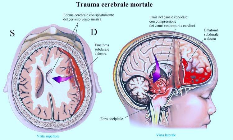 trauma cranico,ematoma subdurale,edema cerebrale