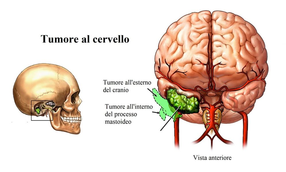 Tumore cerebrale,vertigini