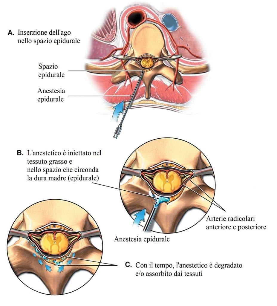 Anestesia epidurale,parto