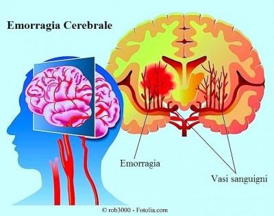Aneurisma,ictus,sintomi,emorragia cerebrale