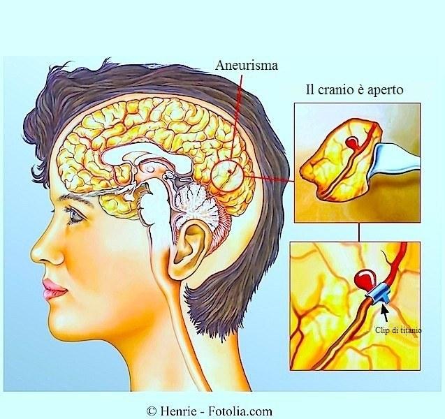 Aneurisma,emorragia cerebrale