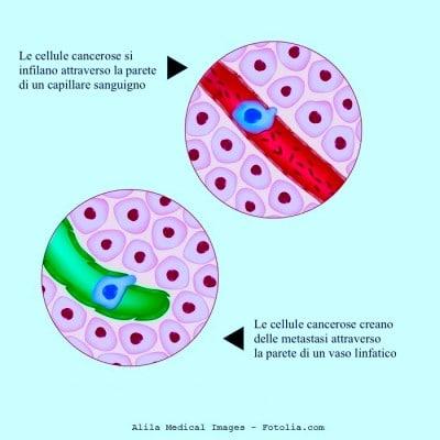Metastasi ai linfonodi