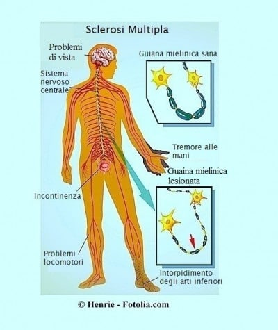 Tipi di sclerosi multipla e cause