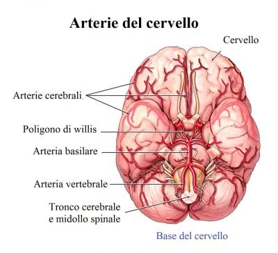 Ictus,arterie del cervello