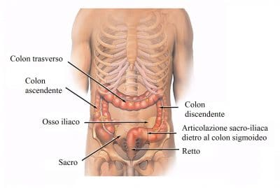 Colite,colon,feci,intestino,diarrea