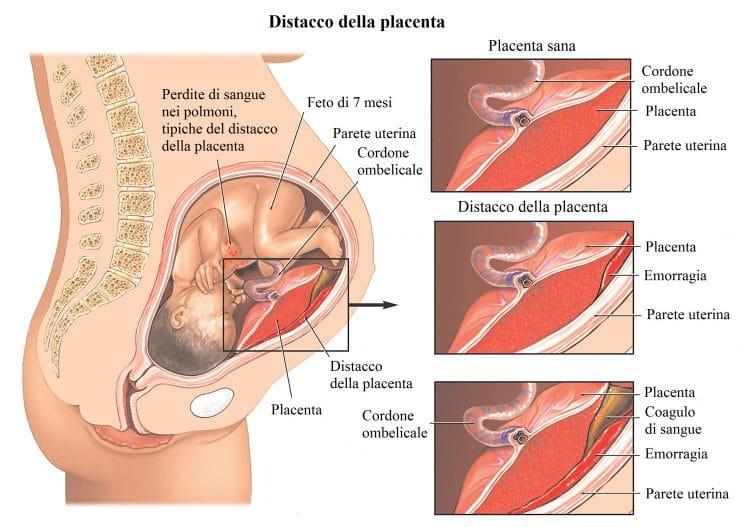 distacco della placenta,emorragia,gravidanza