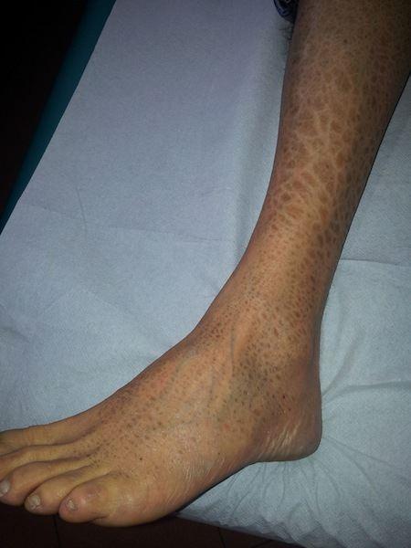Pelle secca,eczema