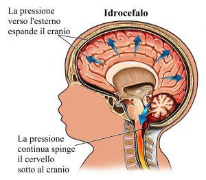 Idrocefalo,liquido,cervello,cranio
