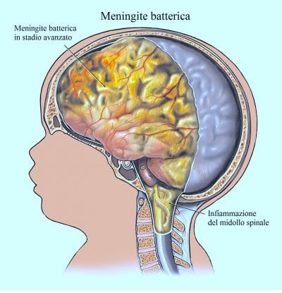 Meningite,dolore al collo,nuca,rigidità