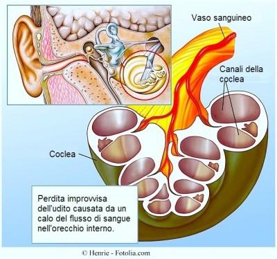 Perdita dell'udito,flusso,sanguigno