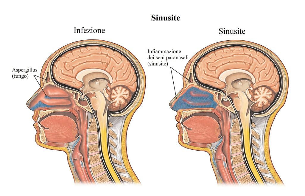 sinusite,mal di testa,naso chiuso