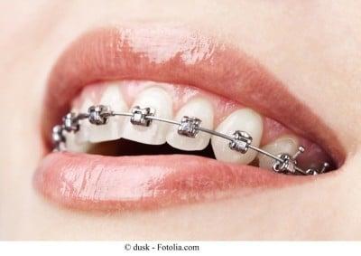 apparecchio fisso,denti