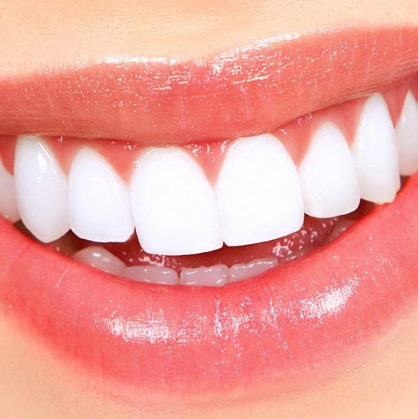 gengive,labbra,belle,denti bianchi
