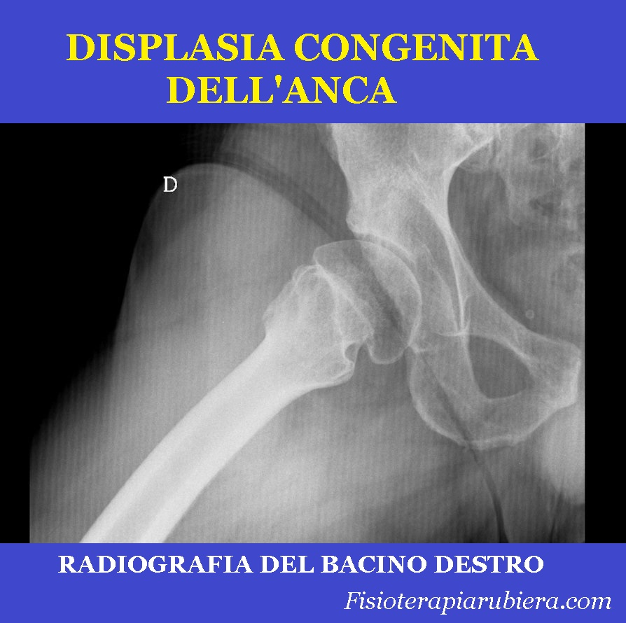 radiografia,displasia congenita dell'anca