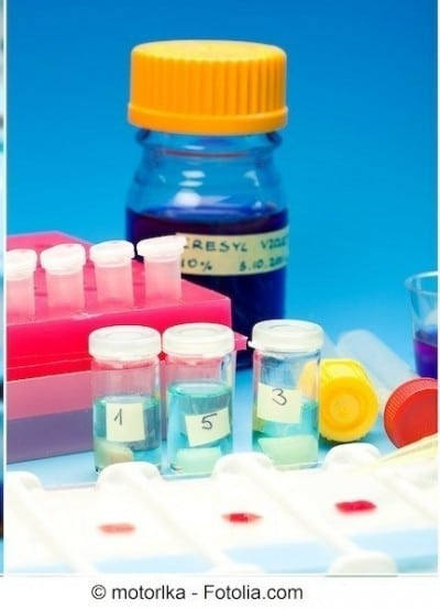 Glicemia alta o iperglicemia