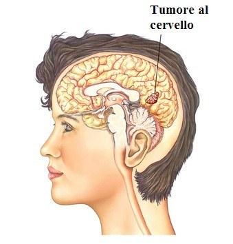 Epilessia,tumore al cervello