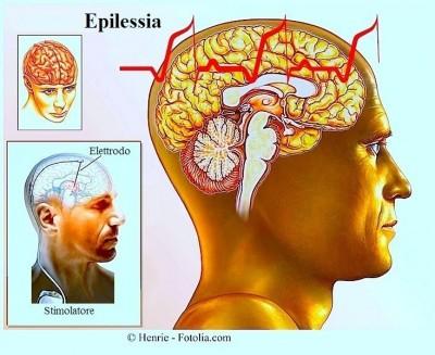 Sintomi dell'epilessia
