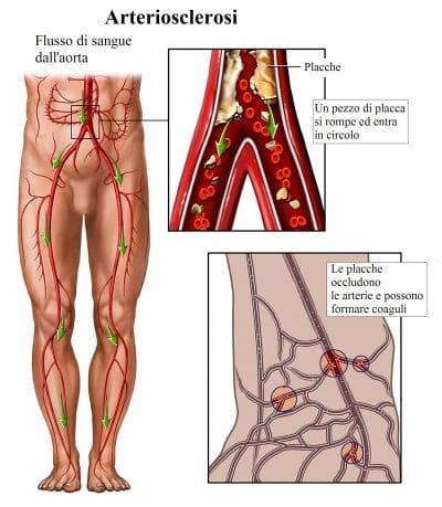 aterosclerosi,trombosi venosa profonda,placche nelle arterie