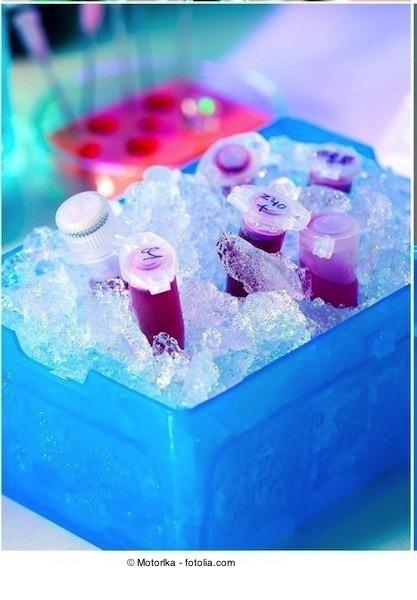 Esami del sangue,analisi,ghiaccio