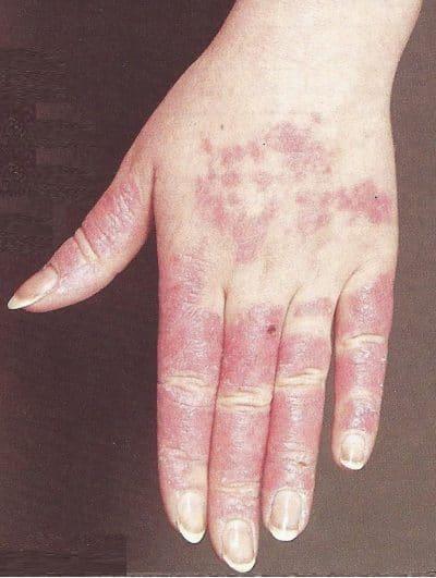 lupus-eritematoso-sistemico