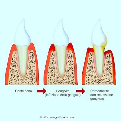 Parodontite,gengive infiammate,gengivite,dolore
