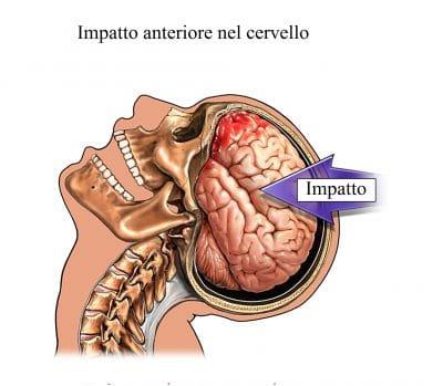 Trauma cranico,perdita di conoscenza