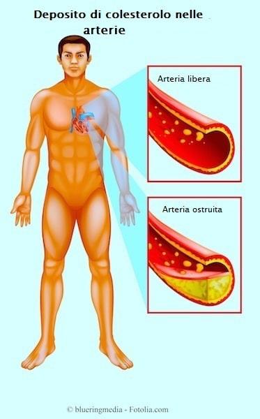 Colesterolo alto,ldl,hdl,placche aterosclerotiche