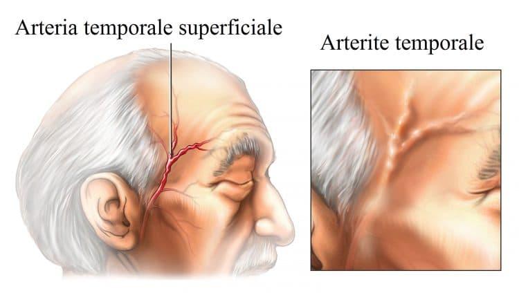 arterite temporale,horton,vasculite