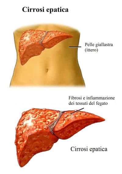 Cirrosi,fegato,ittero,infiammazione,steatosi