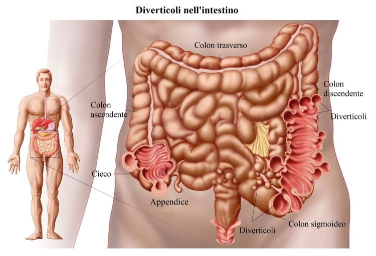 Diverticoli,colon discendente,diverticolite