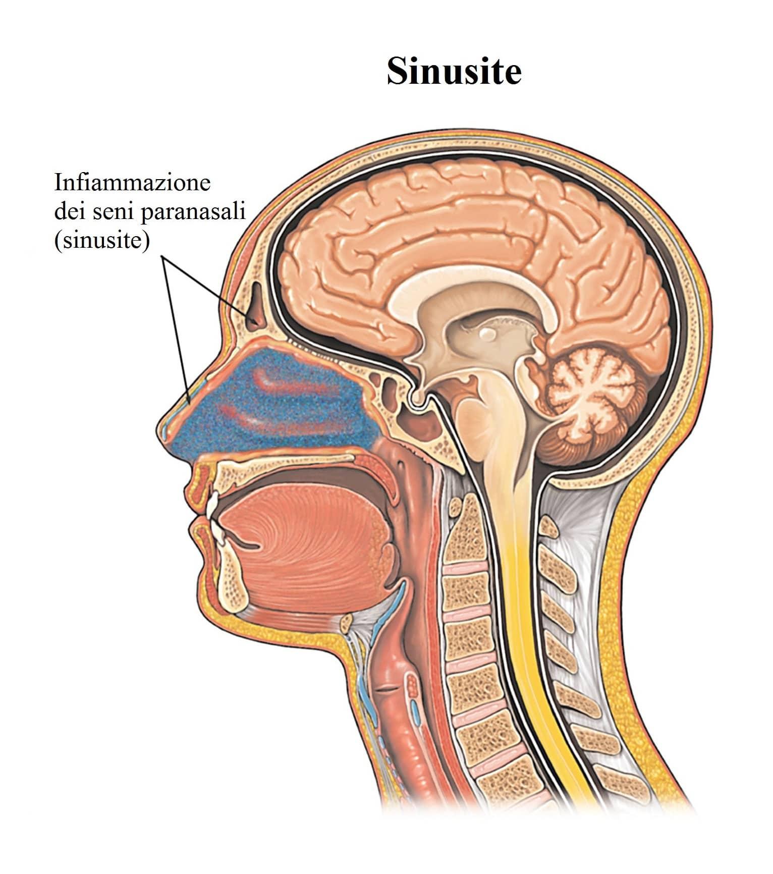 Testa pesante e confusione vertigini ansia stanchezza for Mal di testa da pressione alta