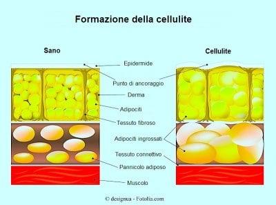 Rimedi per la cellulite