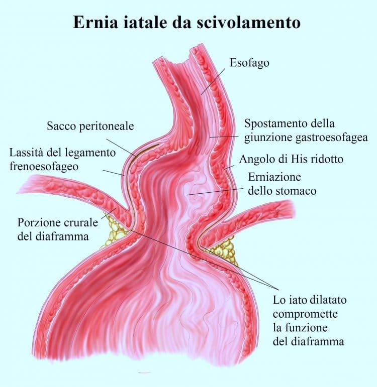 Ernia iatale,scivolamento,esofago