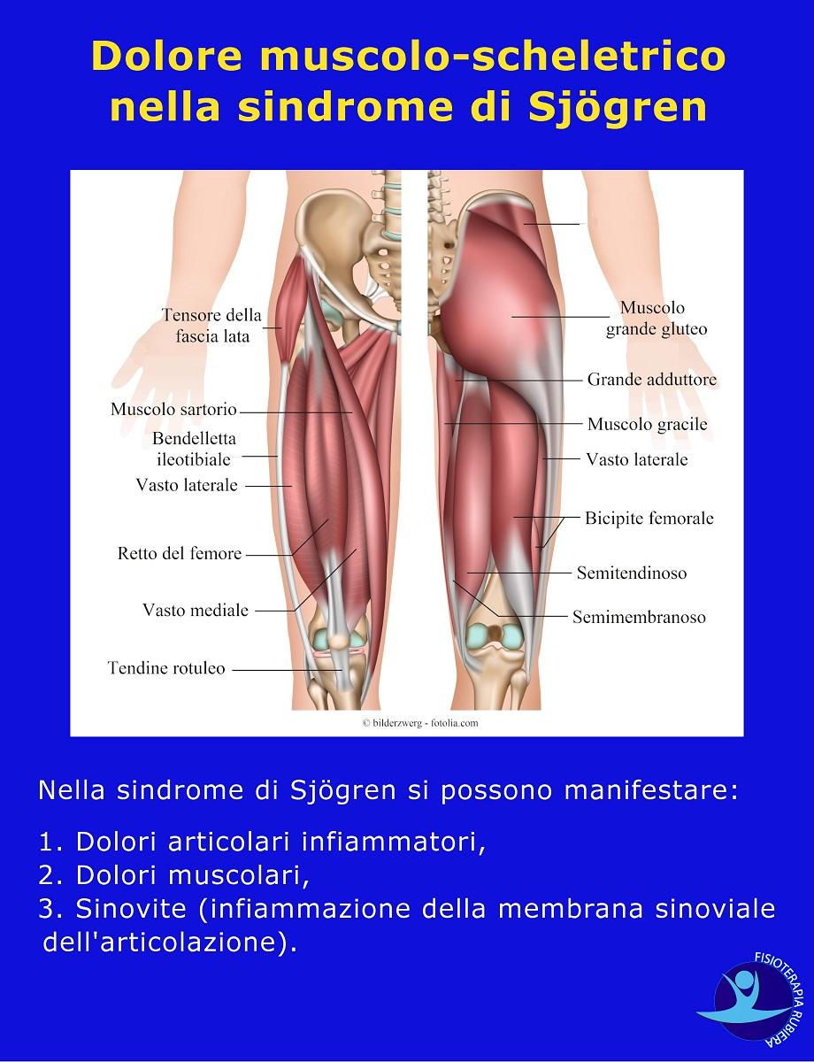 Dolore-muscolo-scheletrico-nella-sindrome-di-Sjögren
