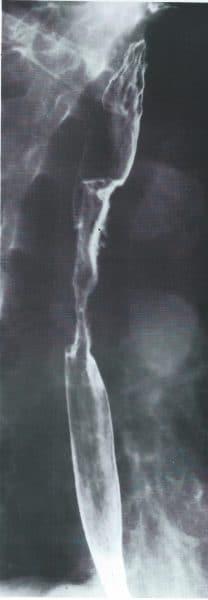 radiografia-carcinoma-stenosante