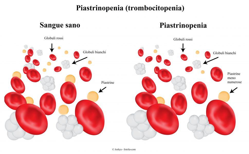 Piastrinopenia