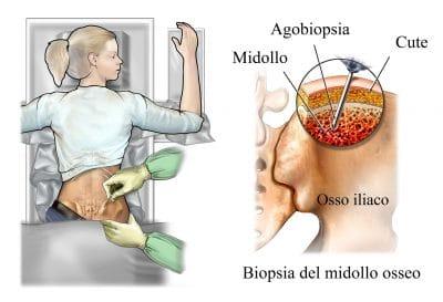 Biopsia del midollo osseo,bacino,ago