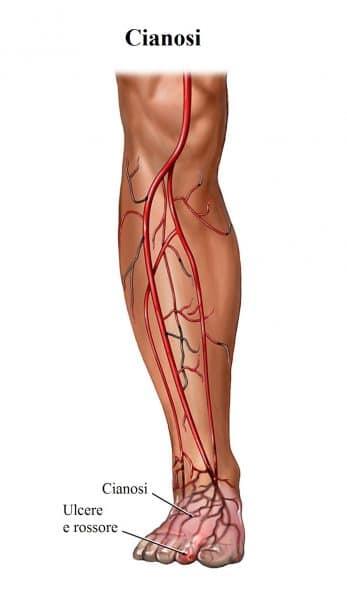 Cianosi,ulcere,circolazione,pelle