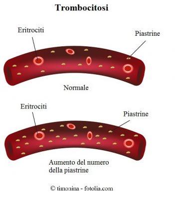 Trombocitosi