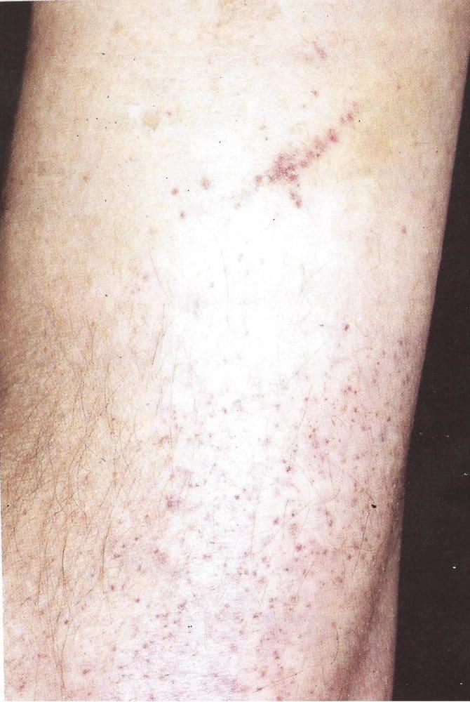porpora-trombocitopenica