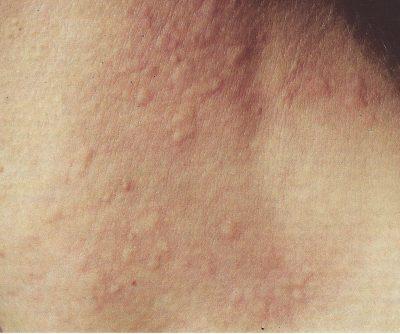 orticaruia-colinergica