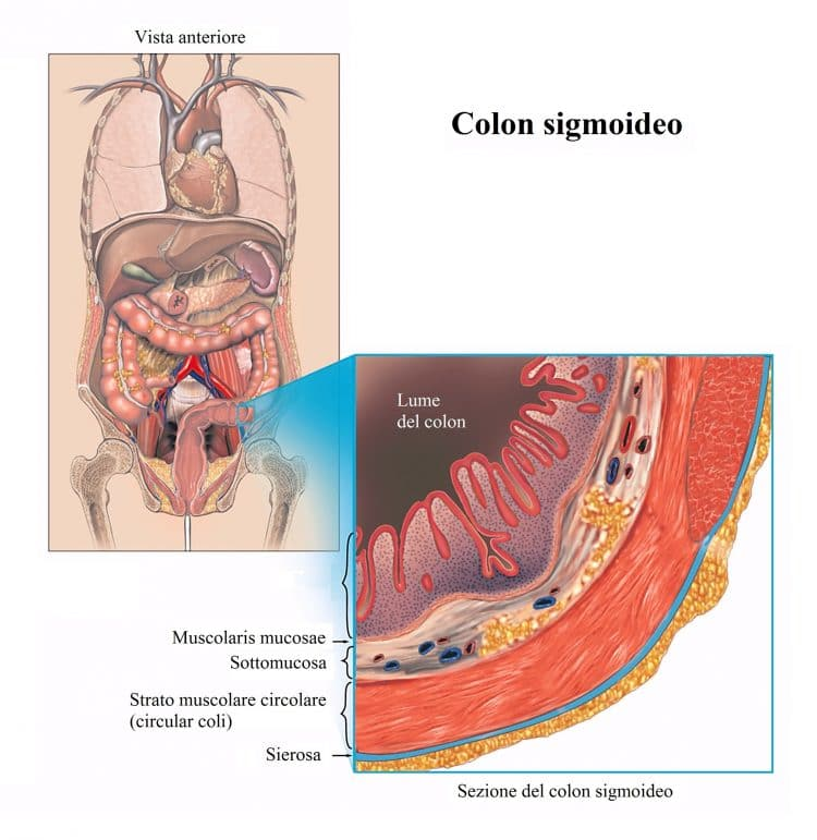 Colon sigmoideo,sigma,intestino,mucosa