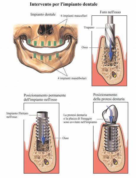 Impianto dentale,intervento chirurgico
