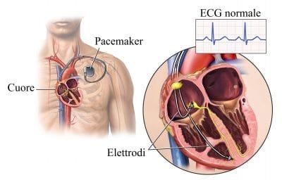 Pacemaker,elettrodi,stimolazione,battito,cuore
