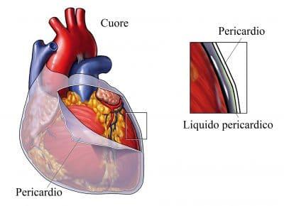 Pericardio sieroso,cuore