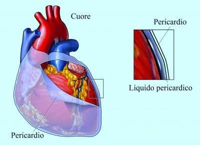 pericardio,pericardite,cuore,membrana esterna