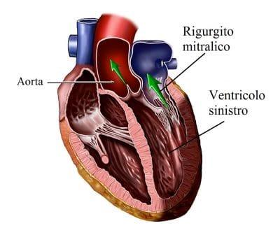 Rigurgito mitralico,ventricolo sinistro,atrio,cuore